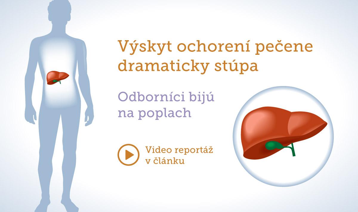 pestrec-mariansky-vyskyt-chorob-pecene-dramaticky-stupa-vasbylinkar-sk